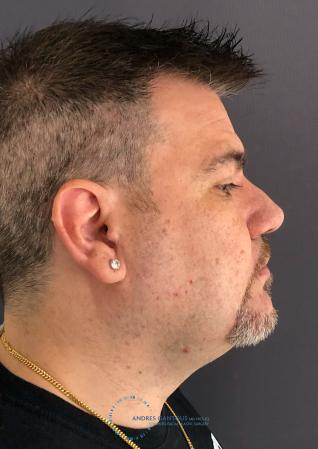Revision Rhinoplasty: Patient 24 - After Image 6