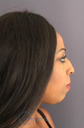 Rhinoplasty: Patient 68 - Before and After Image 6