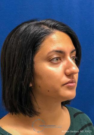 Rhinoplasty: Patient 84 - Before Image 3