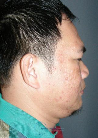 Rhinoplasty: Patient 65 - Before Image 5