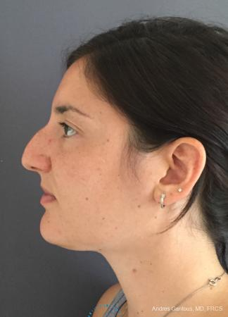 Rhinoplasty: Patient 85 - Before and After Image 6