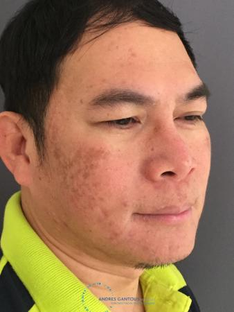 Rhinoplasty: Patient 65 - After Image 3
