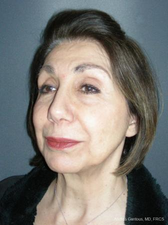 Rhinoplasty: Patient 55 - After Image 2