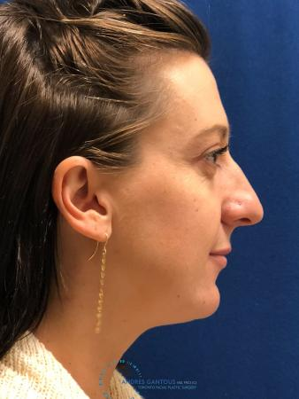 Rhinoplasty: Patient 27 - After Image 5