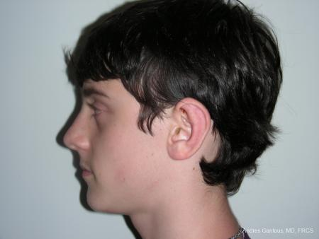 Otoplasty And Earlobe Repair: Patient 3 - After Image 5