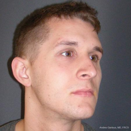 Rhinoplasty: Patient 50 - After Image 2