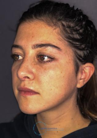 Revision Rhinoplasty: Patient 21 - After Image 3