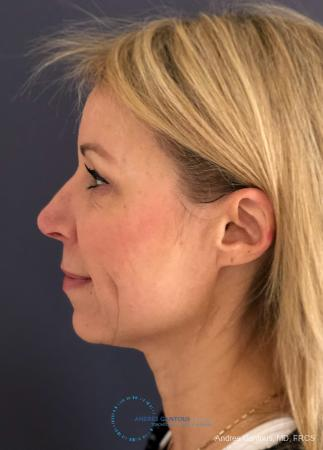 Rhinoplasty: Patient 16 - After Image 6