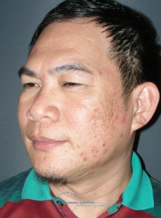 Rhinoplasty: Patient 65 - Before Image 4