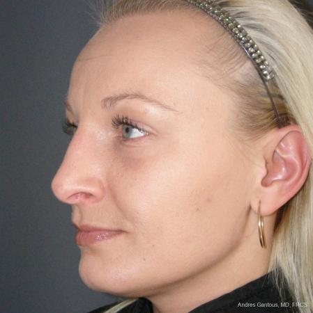 Rhinoplasty: Patient 49 - After Image 4