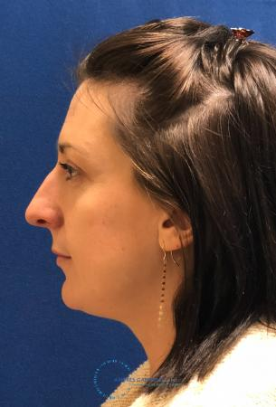 Rhinoplasty: Patient 27 - After Image 6