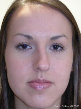 Rhinoplasty: Patient 22 - Before Image 1