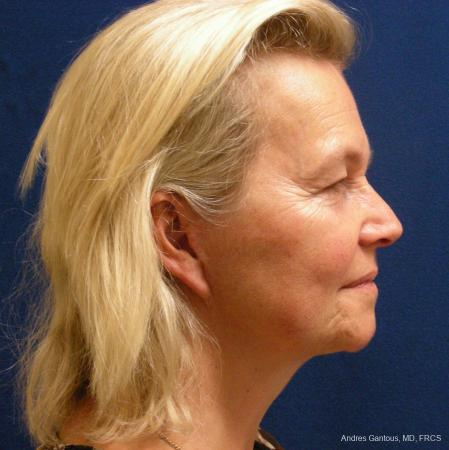 Facelift & Neck Lift: Patient 3 - After Image 3
