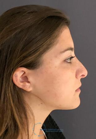 Revision Rhinoplasty: Patient 21 - Before and After Image 6