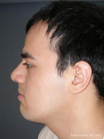 Rhinoplasty: Patient 56 - After Image 5