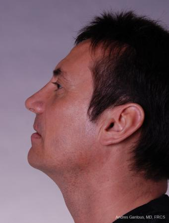Rhinoplasty: Patient 11 - After Image 2