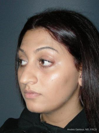 Rhinoplasty: Patient 46 - Before Image 4