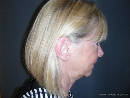 Facelift & Neck Lift: Patient 10 - After Image 6