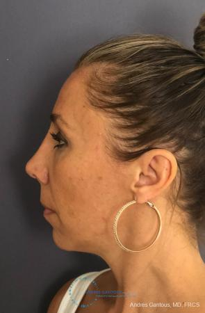 Revision Rhinoplasty: Patient 3 - After Image 6