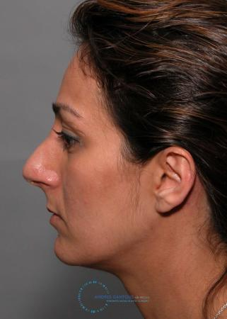 Revision Rhinoplasty: Patient 17 - Before and After 4