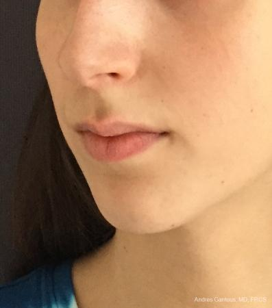 Chin Augmentation: Patient 6 - Before Image