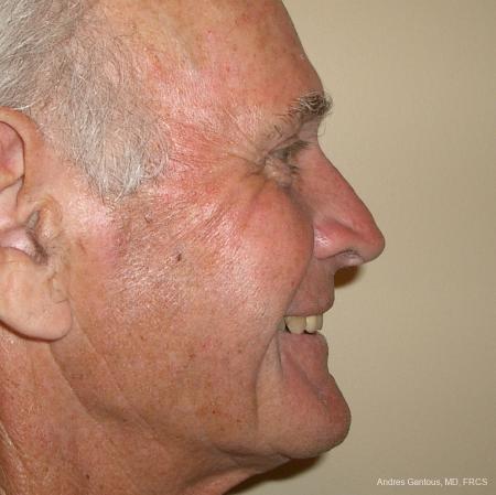 Facelift & Neck Lift: Patient 1 - After Image 2