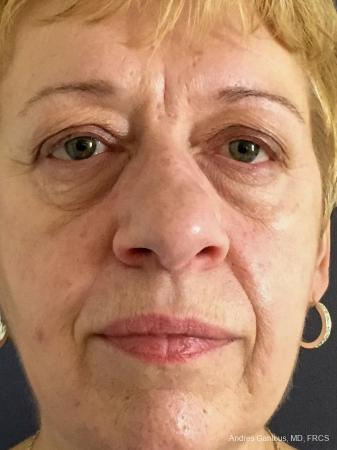 Rhinoplasty: Patient 22 - Before Image 1