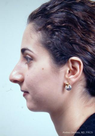 Rhinoplasty: Patient 14 - Before Image 4
