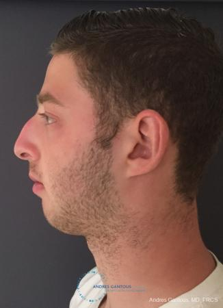 Rhinoplasty: Patient 100 - Before and After Image 6