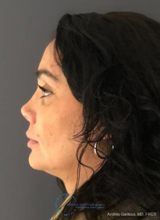 Revision Rhinoplasty: Patient 15 - After Image 6