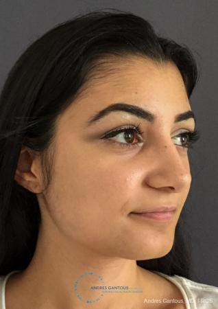 Rhinoplasty: Patient 90 - After Image 3