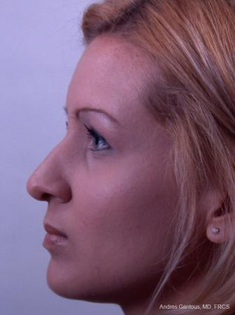 Rhinoplasty: Patient 23 - Before and After Image 4