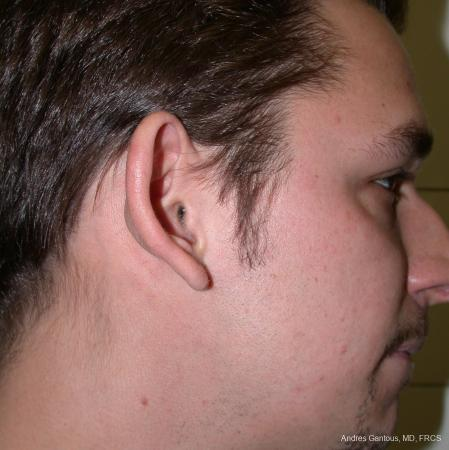 Otoplasty And Earlobe Repair: Patient 1 - Before Image 2