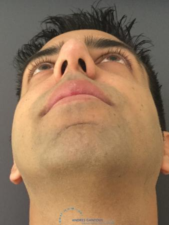 Rhinoplasty: Patient 78 - After Image 2