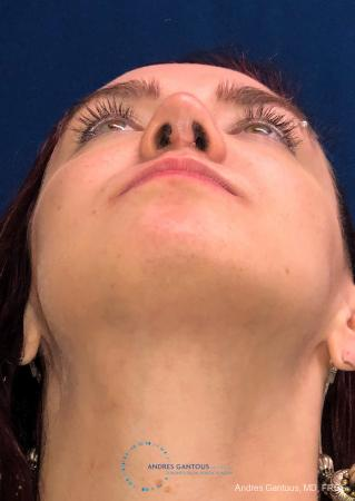 Revision Rhinoplasty: Patient 10 - After Image 2