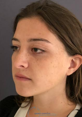 Revision Rhinoplasty: Patient 21 - Before Image 3