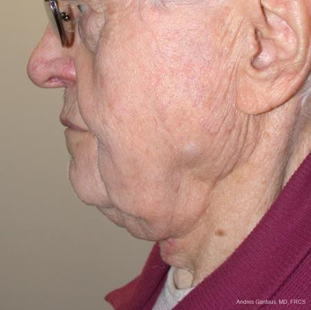 Facelift & Neck Lift: Patient 5 - After Image 2
