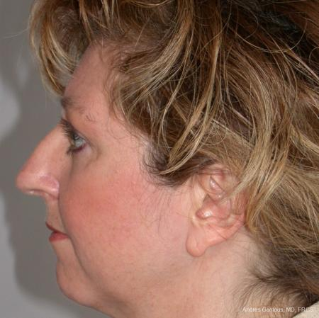 Rhinoplasty: Patient 36 - Before and After Image 3