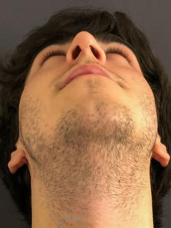 Rhinoplasty: Patient 69 - After Image 2