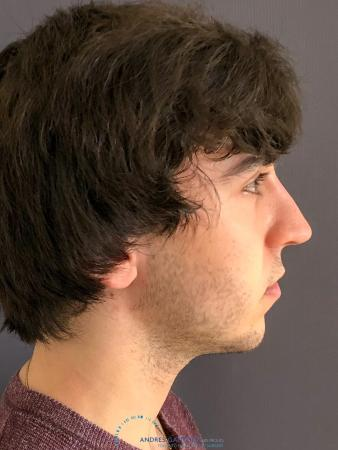 Rhinoplasty: Patient 69 - After Image 5