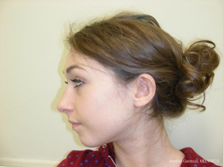 Otoplasty And Earlobe Repair: Patient 22 - Before and After Image 5
