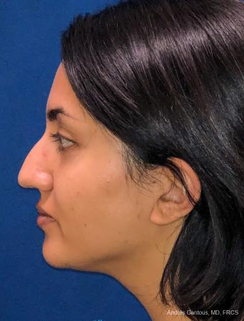Rhinoplasty: Patient 84 - Before and After Image 6