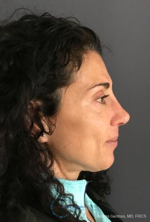 Revision Rhinoplasty: Patient 6 - After Image 6