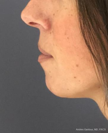 Chin Augmentation: Patient 7 - Before and After Image 2