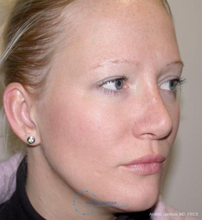 Rhinoplasty: Patient 97 - After Image 3