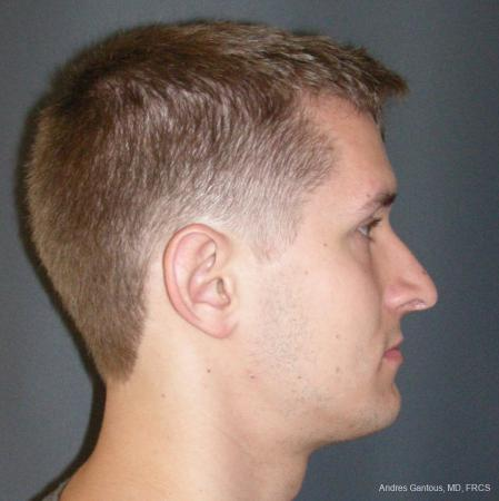 Rhinoplasty: Patient 50 - After Image 3