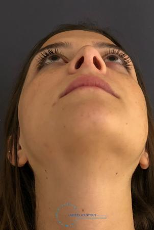 Revision Rhinoplasty: Patient 21 - Before Image 2