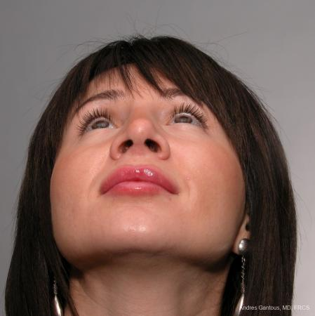 Rhinoplasty: Patient 38 - After Image 4