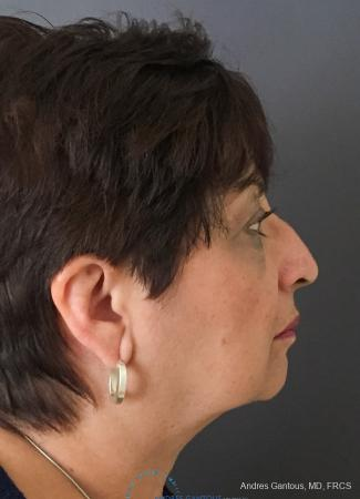 Rhinoplasty: Patient 94 - Before Image 5