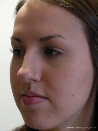 Rhinoplasty: Patient 22 - Before Image 3